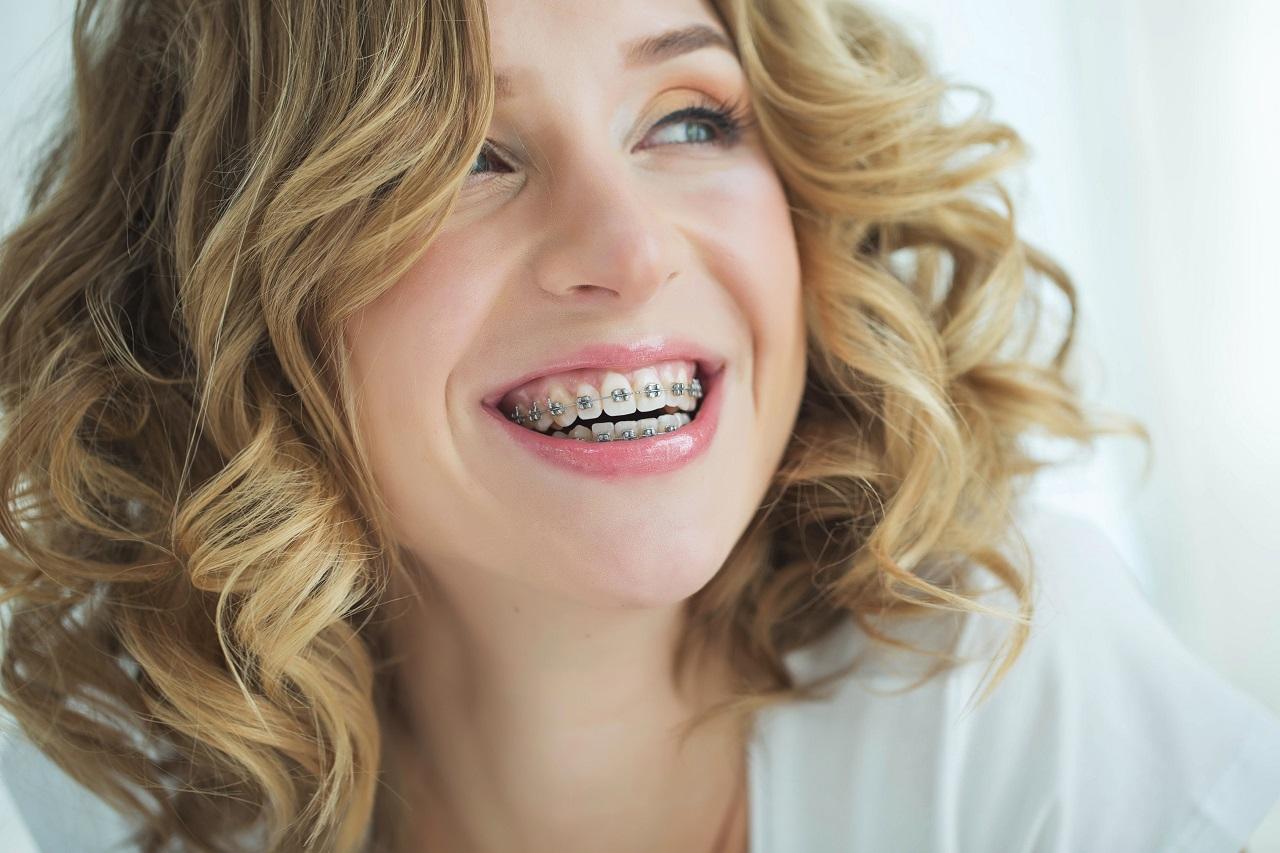 W jakim celu zakładamy aparat ortodontyczny?