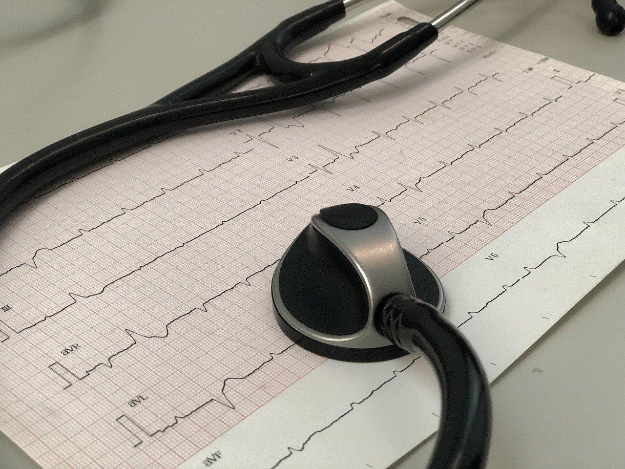 Kiedy warto zrobić echo serca?